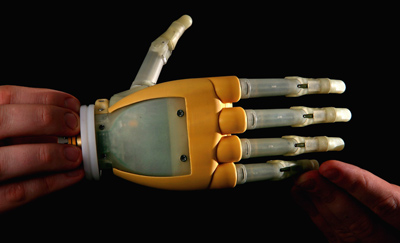 the history of the production of prosthetics
